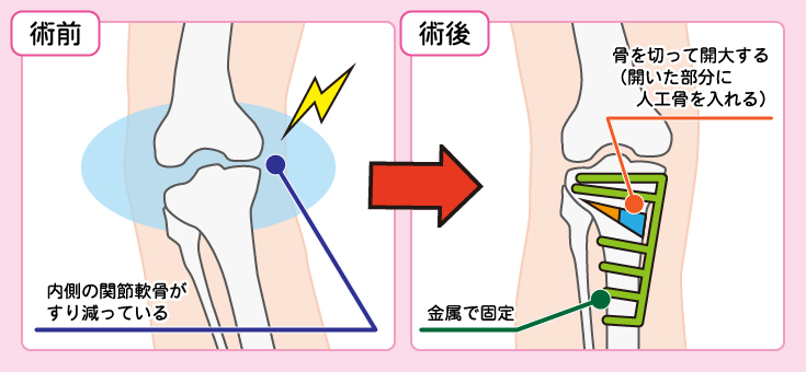 高位脛骨骨切り術(関節温存術)